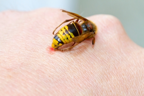 Hornet on a hand sting in the skin